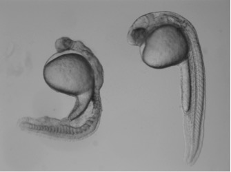 Compared to a normal zebrafish embryo (right), an embryo lacking gdf3 (left) shows major defects resulting from its inability to form mesoderm and endoderm cells early in development.