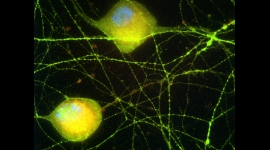 Princeton scientists are investigating how viruses become latent in the nervous system -- and how to prevent it. Here, cell bodies (gold, with blue-stained nuclei) and axons (green) show the effects of being infected with a virus (red) for 24 hours.  Image courtesy of the researchers