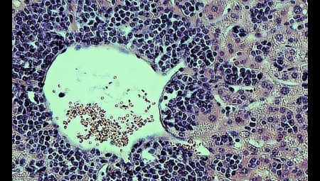 Infection with a strain of yellow fever virus (YFD-17D) in mouse liver. The liver of a mouse whose immune cells lack the immune signaling component known as STAT1 shows severe lymphocyte infiltration and inflammation, as well as necrosis, after infection with YFV-17D. Credit: Florian Douam and Alexander Ploss